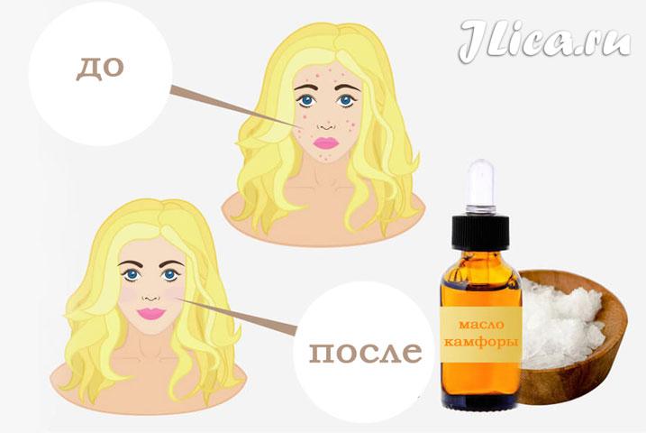 Применение камфорного масло для кожи лица показания