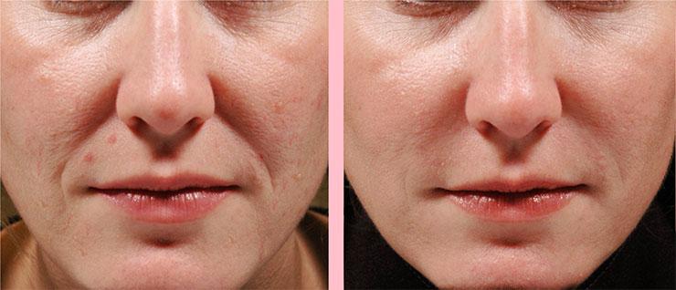 Моё лицо до и после применения Inno Gialuron фото отзывы