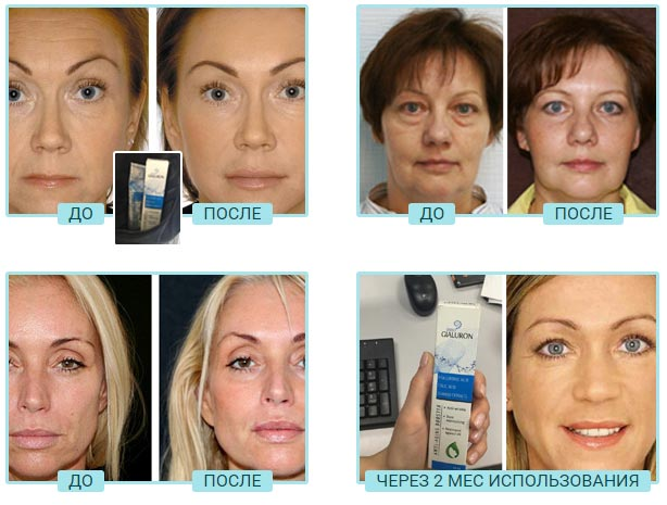 Фото до и после inno GIALURON омоложение кожи лица