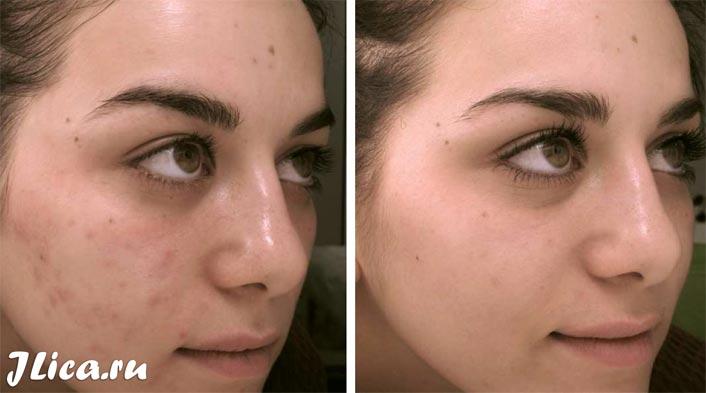 химический пилинг кожи лица фото до и после