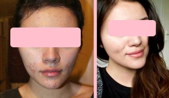 омолодить кожу лица фото до и после Inno Gialuron