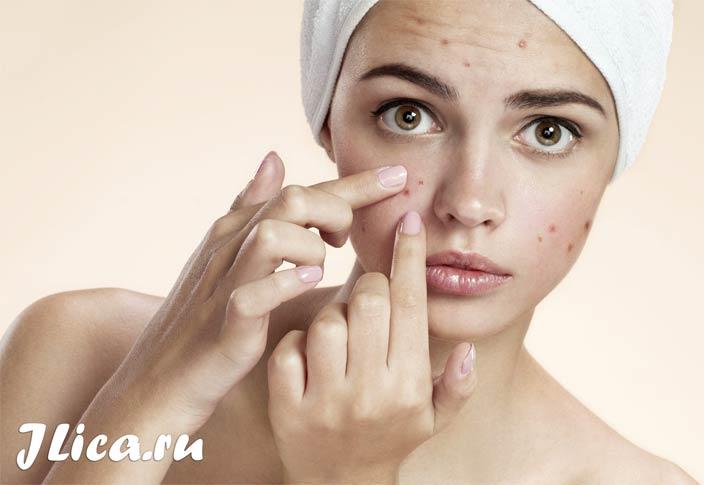 проблемная кожа лица что делать в домашних условиях