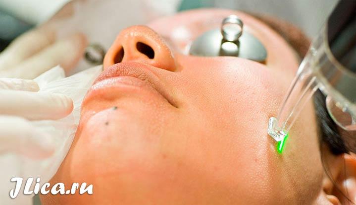 Убрать шрамы лазером на лице отзывы фото
