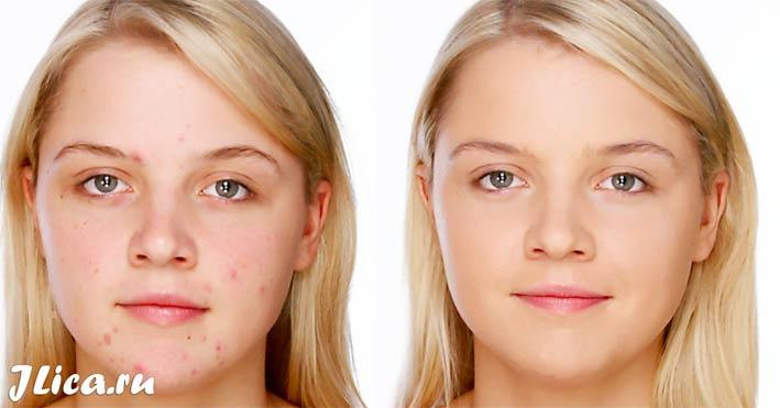 уход за проблемной кожей лица рецепты дома отзывы