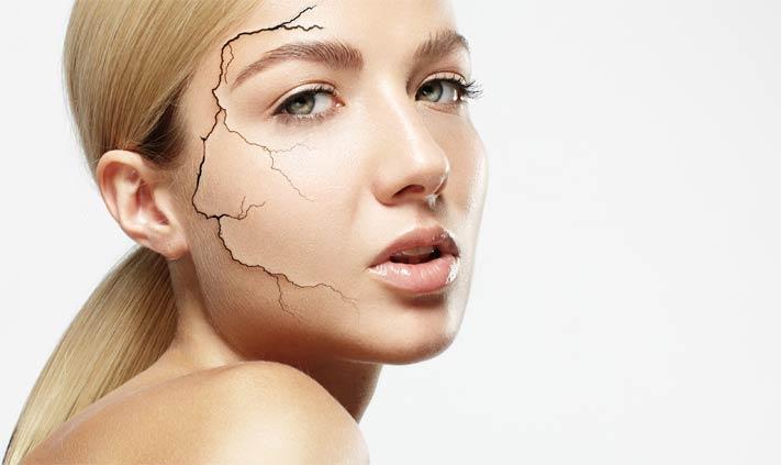 Тонкая сухая кожа лица что делать в домашних условиях