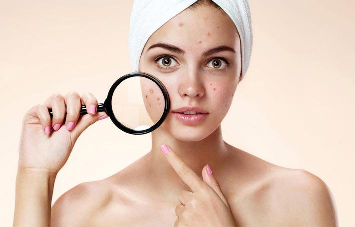 Воспаление кожи лица лечение народными средствами