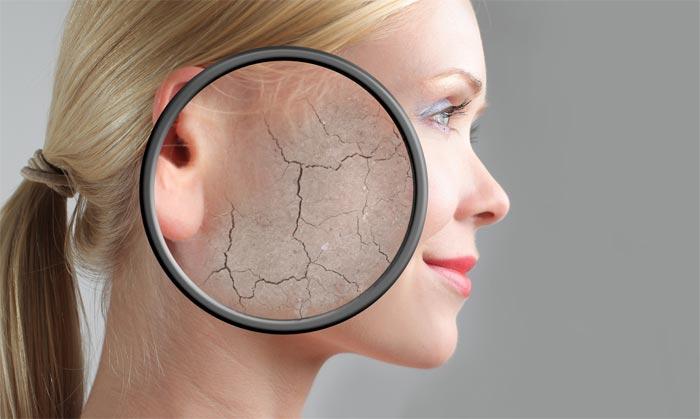 средства для сухой кожи лица