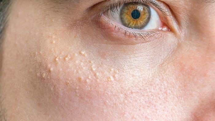 милиумы на лице лечение