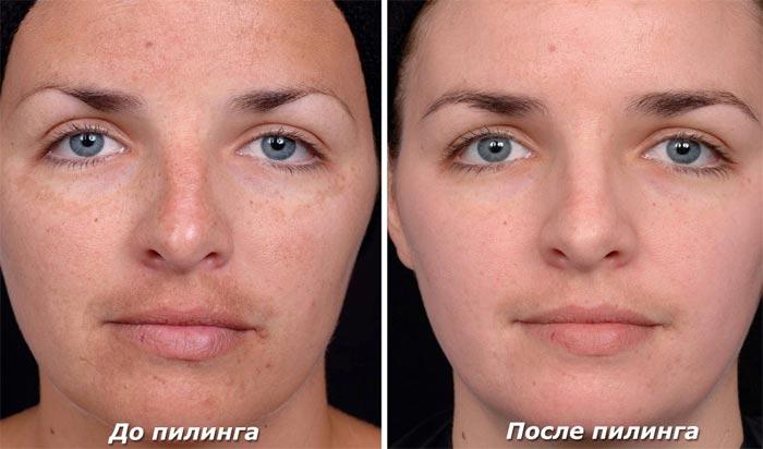 Пилинг кожи лица до и после