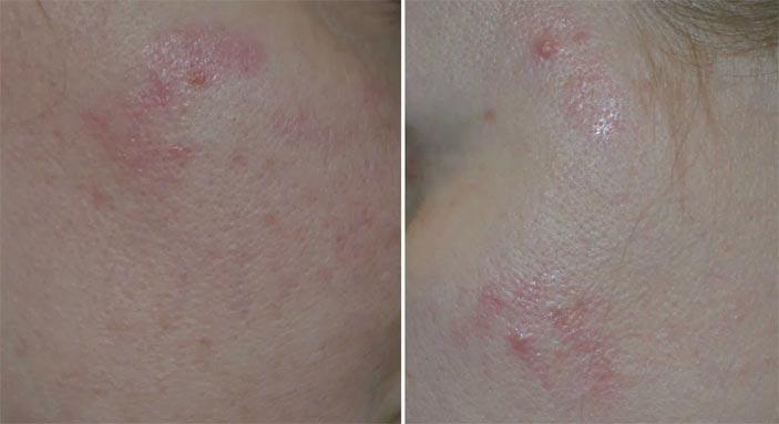 регецин отзывы до и после