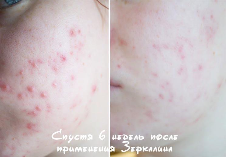 Фото до и после использования препарата