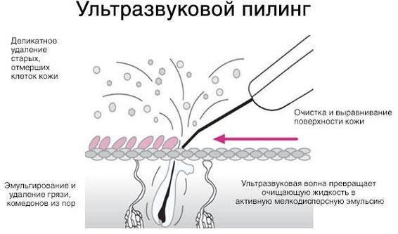 Ультразвуковой