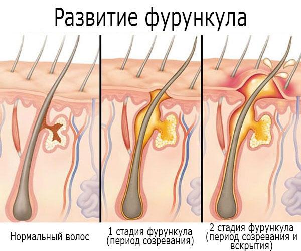 развитие фурункула