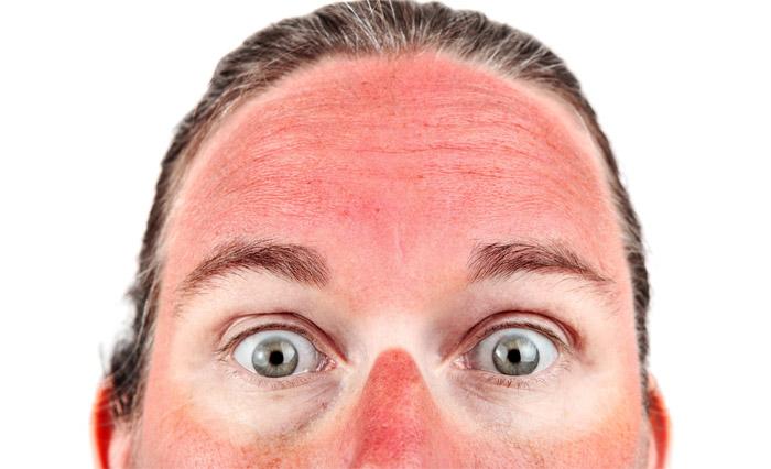 лицо после солнечного ожога