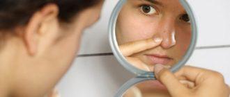 Аптечная косметика для проблемной кожи