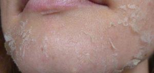 Шелушение после ретиноевого пилинга
