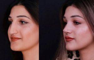 Пластическая операция для изменение формы носа