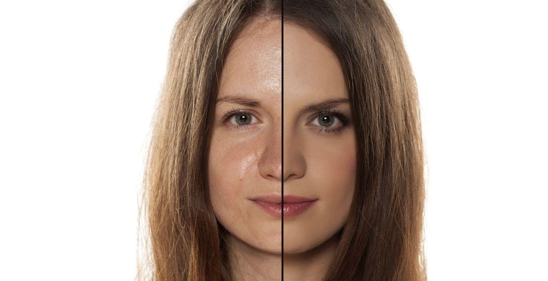 гель для умывания для проблемной кожи