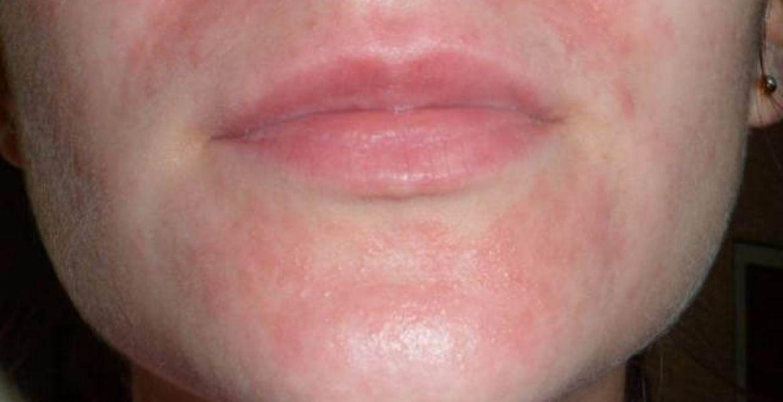 Почему возникает аллергия на маску