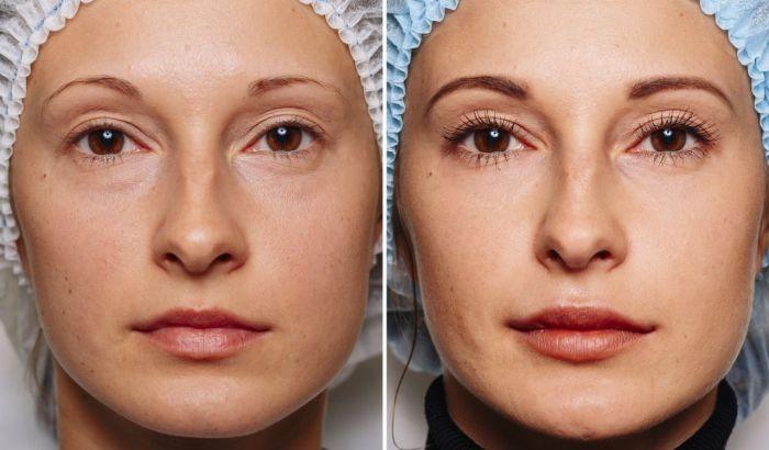 филлеры до и после фото